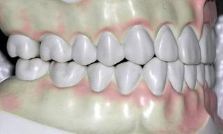 Zahnschmerzen / Zahnschmerz